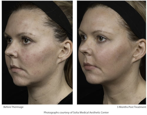 Thermage, Fraxel, Liposonix: 3 Real Women Review Clinical